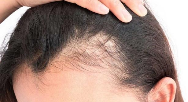 3 remedios caseros para perdida de cabello en mujeres